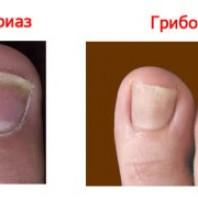 Пожелтел ноготь? Определяем болезнь!