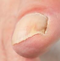 Как выглядит грибок ногтей — фото