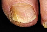 поверхностный грибок разрушает кожу