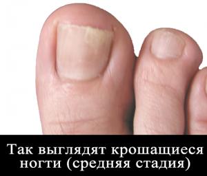 Ногти на ногах крошатся
