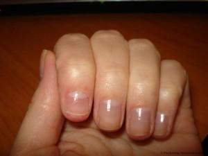 Отзвыв. После лечения грибка ногтей лоцерилом