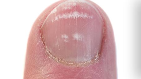 190Как лечить болезни ногтей на руках