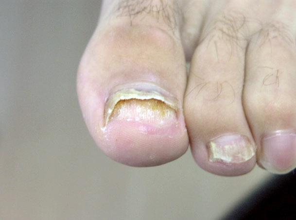 Лак от грибка ногтей микозан или лоцерил что лучше