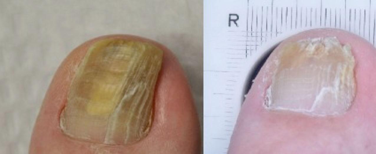 Ногти на ногтях симптомы и лечение фото